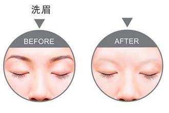 呼和浩特整形皮秒洗眉毛后多久能恢复?