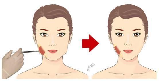 呼和浩特整形医院肉毒素瘦脸针隔多久可以再打?