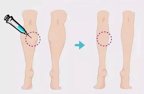 呼和浩特整形注射肉毒素瘦腿针需要注意什么?