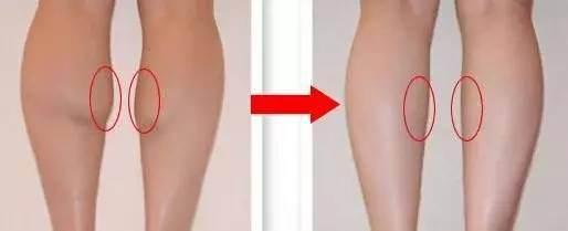 呼和浩特整形医院注射肉毒素瘦腿针效果怎么样?