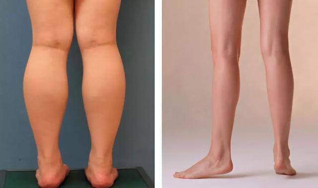 呼和浩特整形打瘦腿针一次会长期有效果吗?