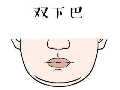 双下巴做吸脂的效果怎么样呢?