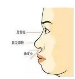 呼和浩特整形医院做隆鼻后脸会变小吗