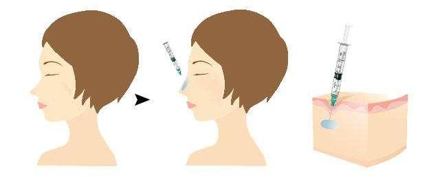 呼和浩特整形医院隆鼻有哪些风险呢