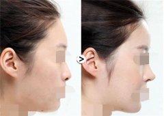 呼和浩特假体隆鼻手术多少钱?