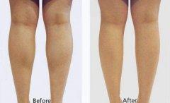 呼和浩特哪家医院注射瘦腿效果好?