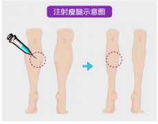 呼和浩特注射瘦腿针大概多少钱?