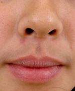 呼和浩特唇部脱毛后如何护理好?