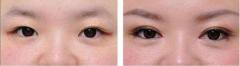 呼市整形什么人适合做埋线双眼皮呢?
