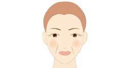 呼市整形有嘴角纹怎么去除?