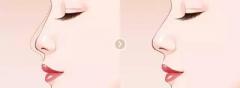 呼和浩特驼峰鼻整形手术方式一般有哪几种?