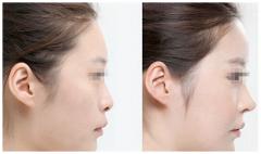 隆鼻之膨体材料和硅胶假体的区别是什么?