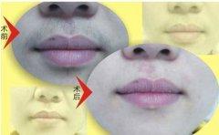 激光唇部脱毛对身体有损害吗啊?
